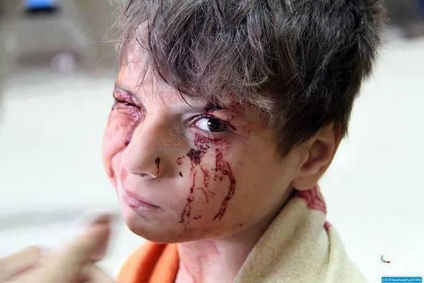 Photo of يوميات الغزازوة في الحرب: شفتوني ع التلفزيون؟